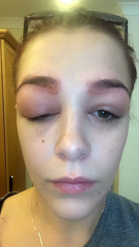 Allergic Reaction That Makes Kids Eyes Swell