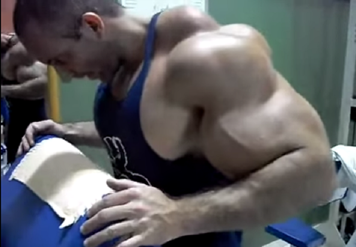 synthol-freak3